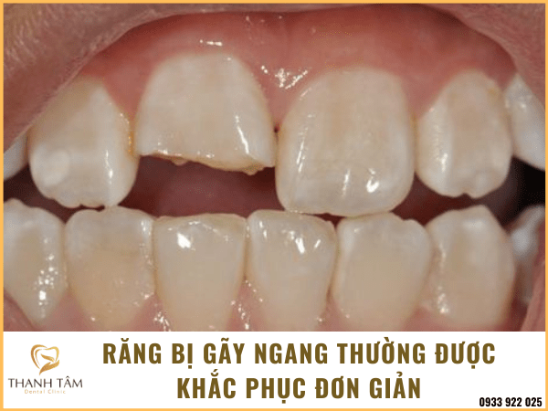 Răng bị gãy ngang