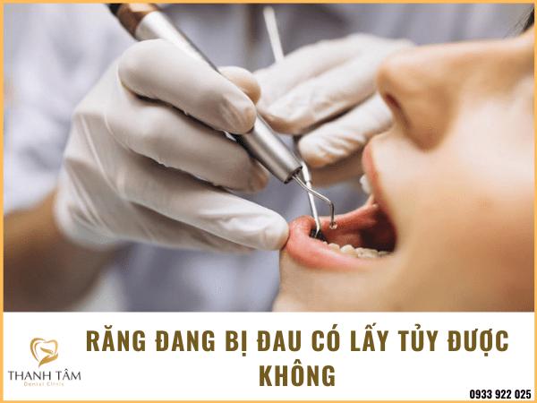 Răng đang bị đau có lấy tủy được không