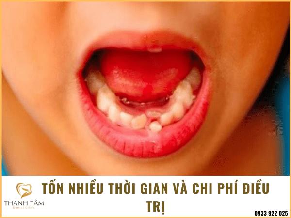 Răng sữa chưa thay răng vĩnh viễn đã mọc