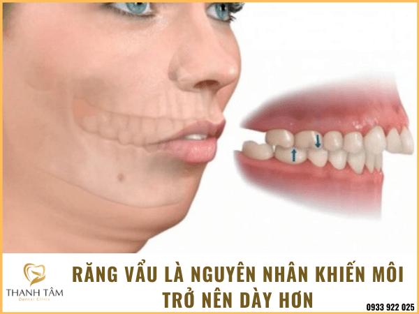 Răng vẩu