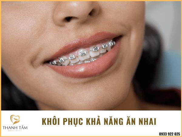 Răng vẩu môi dày