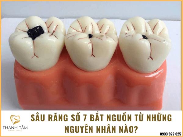 Sâu răng số 7
