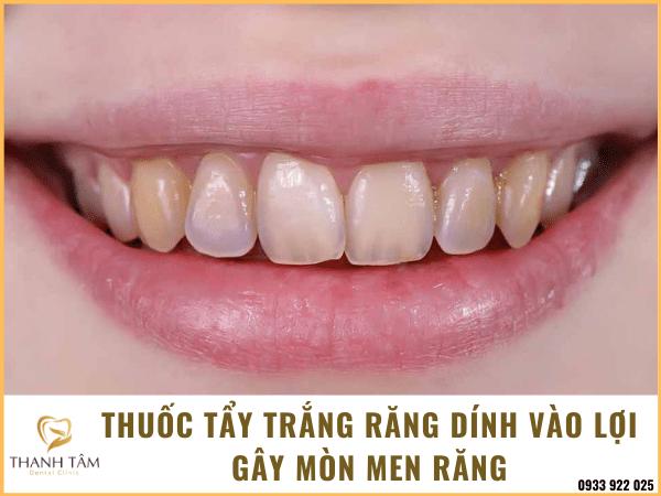 Gây mòn men răng