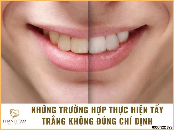 Tẩy trắng răng sai cách