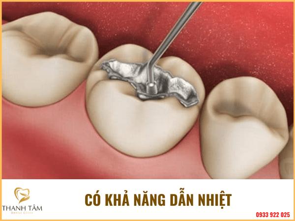 Trám răng bằng Amalgam