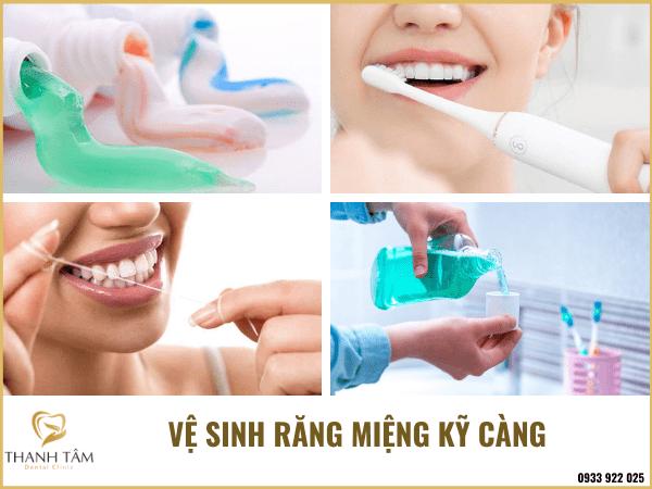 Vệ sinh răng miệng kỹ càng