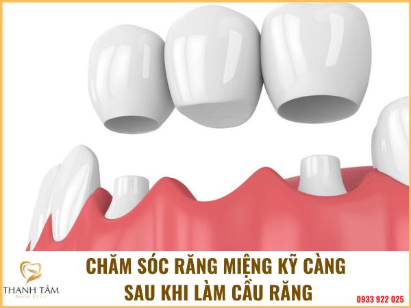 Chăm sóc răng miệng hiệu quả