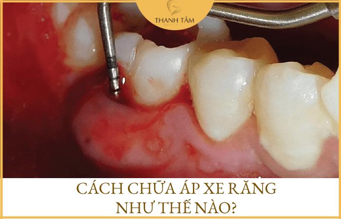 Cách chữa áp xe răng