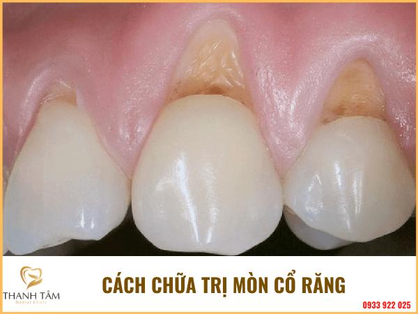 Cách chữa trị mòn cổ răng