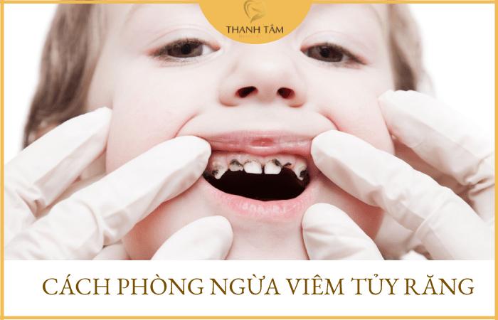 Cách phòng ngừa viêm tủy răng ở trẻ