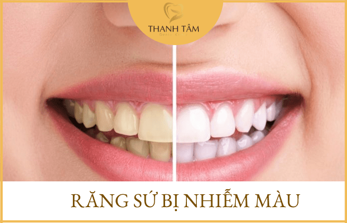 Răng sứ bị nhiễm màu