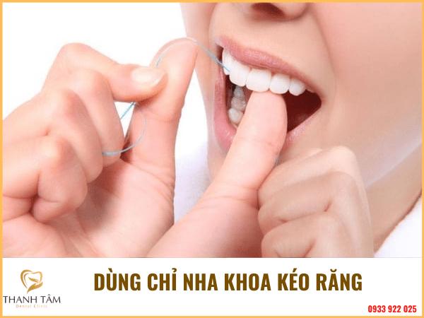 Làm răng đều không cần niềng
