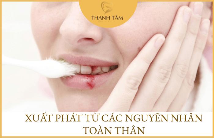 Sưng lợi chảy máu chân răng