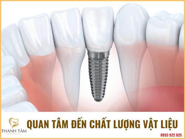 trồng răng Implant
