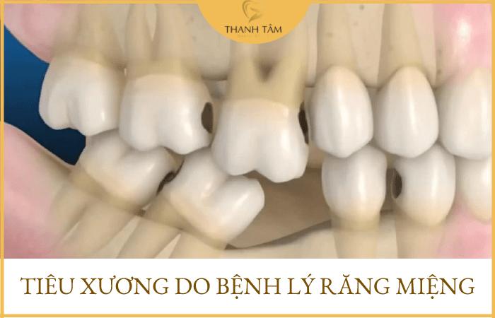 Do các bệnh răng miệng gây ra