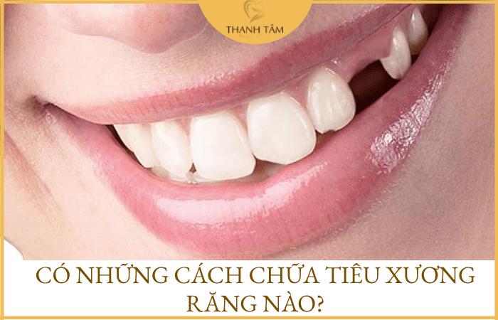 Cách chữa tiêu xương răng