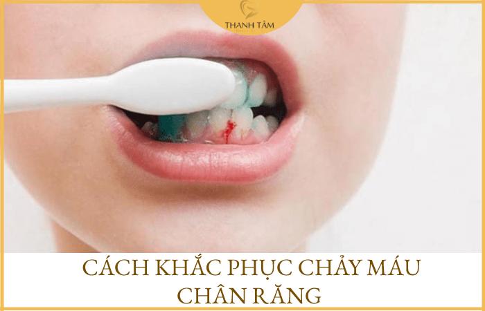Cách khắc phục chảy máu chân răng