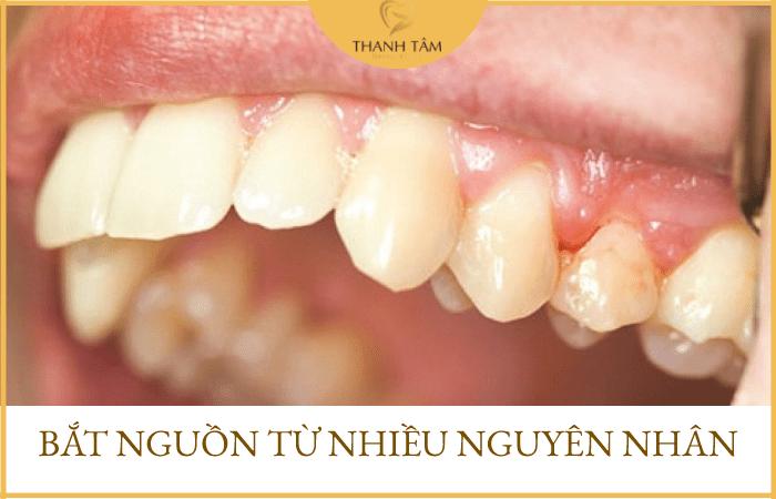 Chân răng có mủ