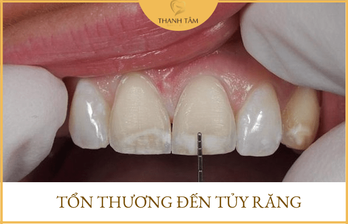 Tổn thương đến tủy răng