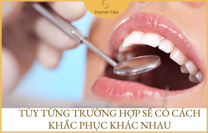 Cách khắc phục bọc răng sứ bị sưng nướu răng