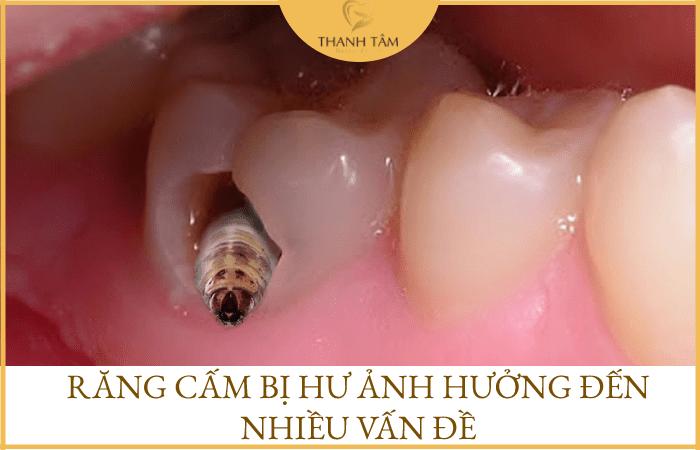 Răng cấm bị hư