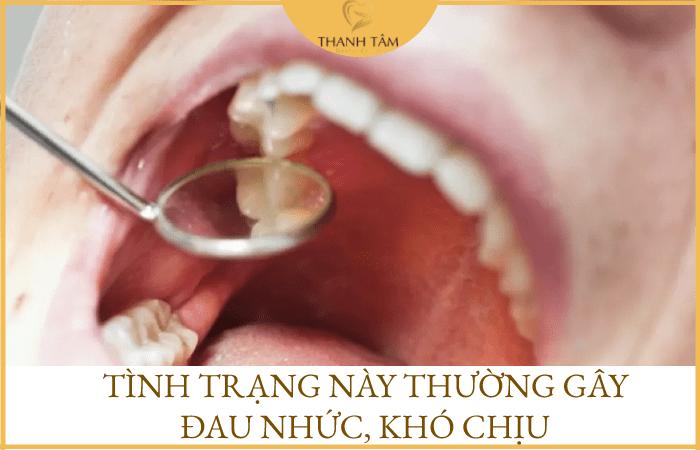 Sưng đau lợi răng hàm