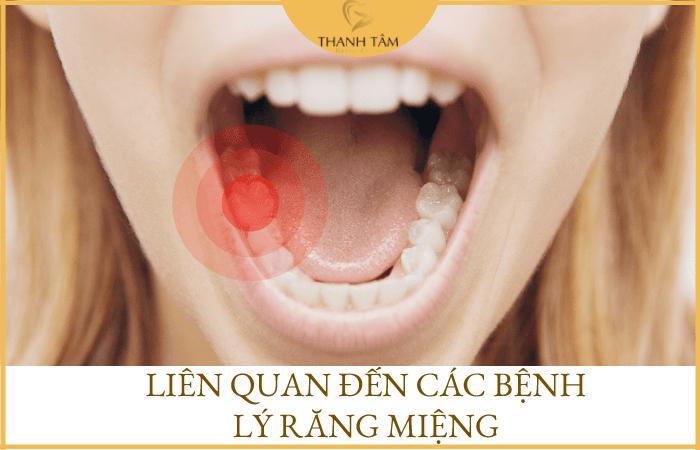 Liên quan đến các bệnh răng miệng